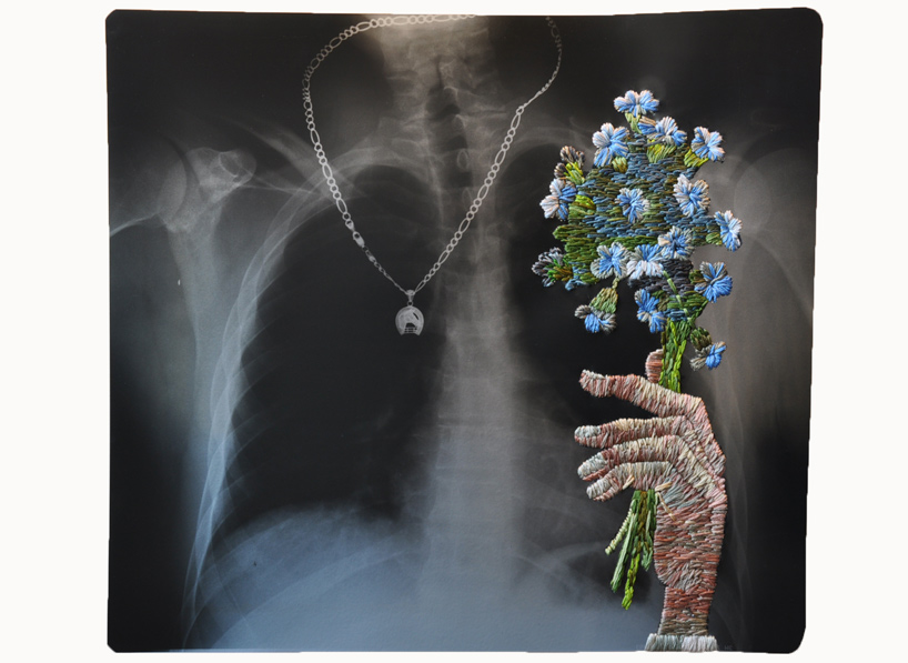 Embroidered X-Rays by Matthew Cox: embroidered_x-rays_10_20111018_1206837749.jpg
