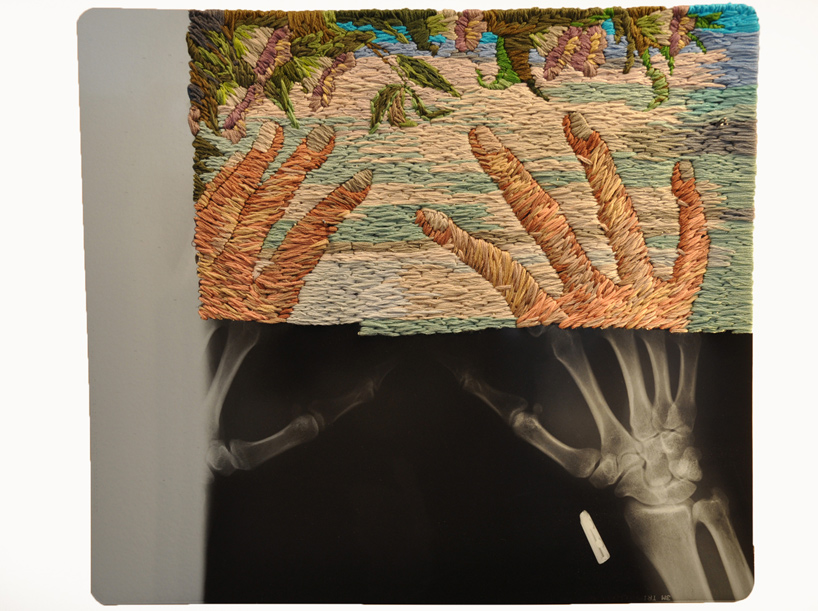 Embroidered X-Rays by Matthew Cox: embroidered_x-rays_5_20111018_2018027314.jpg